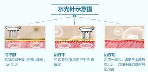 水光针作用及注射效果