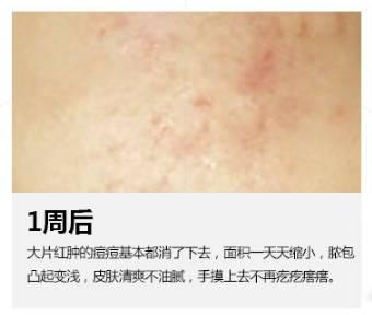 华美美莱祛痘