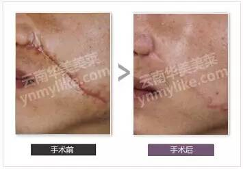 手术疤痕祛疤效果