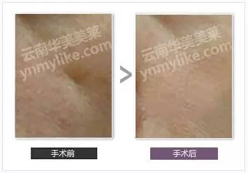 凹陷疤痕祛疤效果