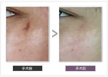 外伤疤痕祛疤效果