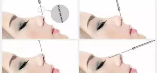 线雕隆鼻示意图