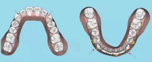 數字化模擬牙齒矯正