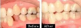 牙齿矫正效果