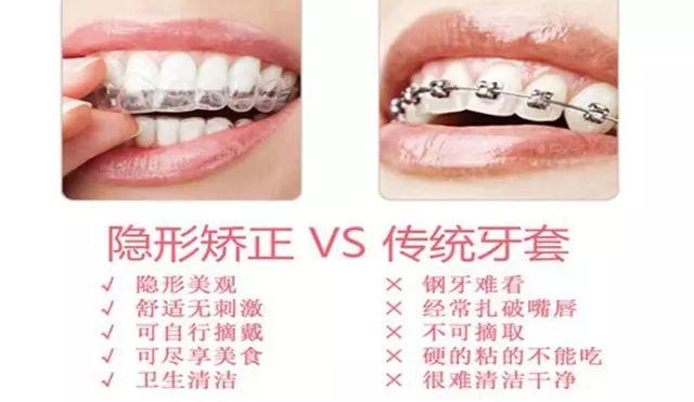 隐形矫正和传统牙套矫正对比