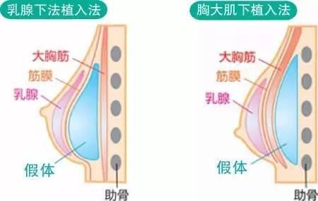 隆胸假体植入位置