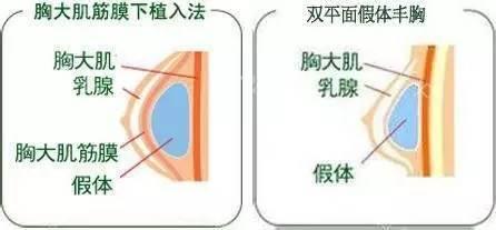 双平面法植入假体