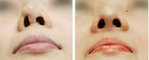 隆鼻修复效果