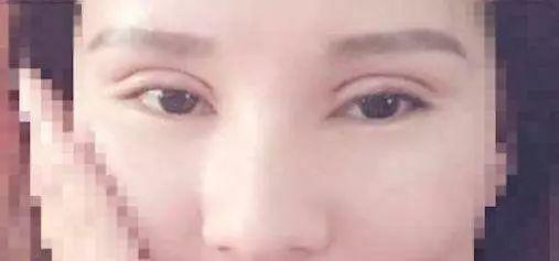昆明眼部整形