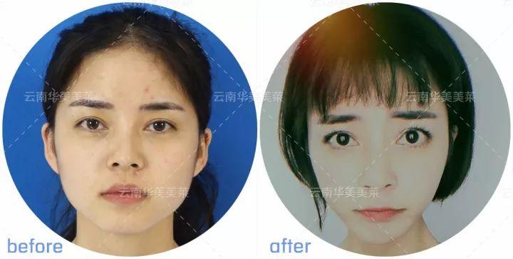 瘦脸效果对比图