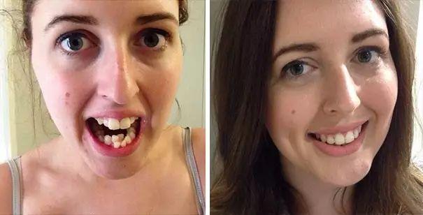 牙齒矯正效果