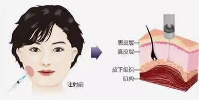 瘦脸针注射位置