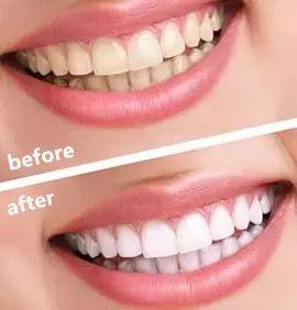 牙齿美白效果