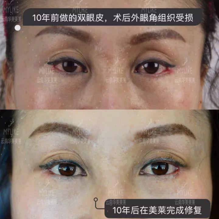 昆明华美双眼皮修复效果对比图