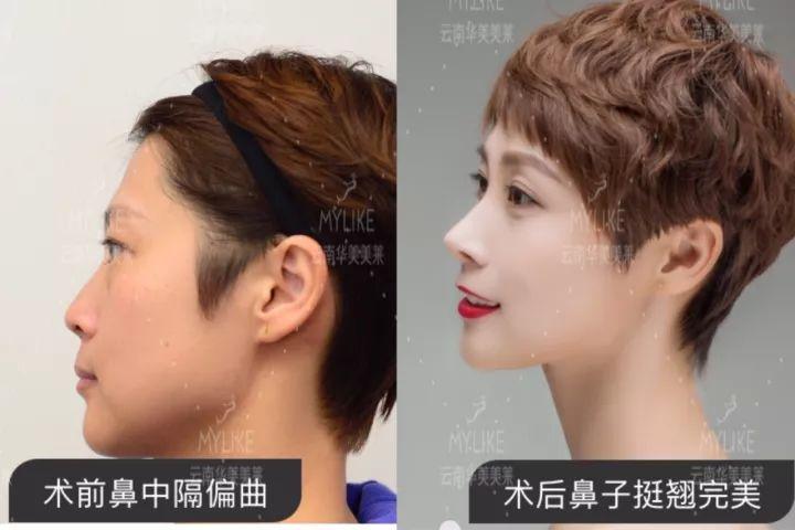 鼻整形修复效果