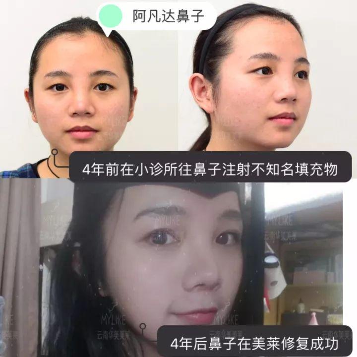 注射隆鼻修复效果