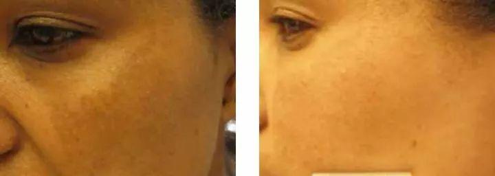 黄褐斑治疗4次效果