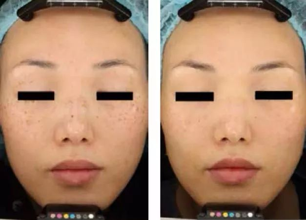 雀斑治疗1次效果对比图