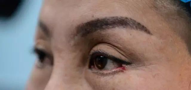 外眼角组织受损