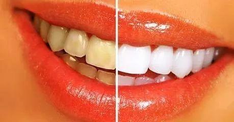 牙齿颜色对比