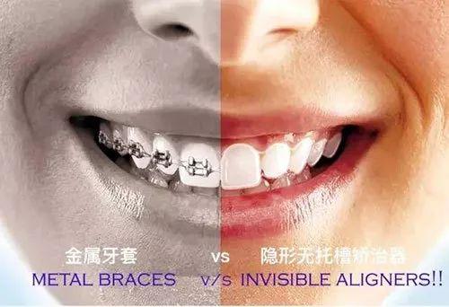 牙齒矯正方法對比