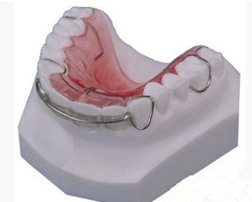牙齿矫正器