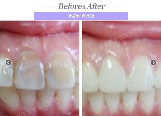 牙齿美白对比图
