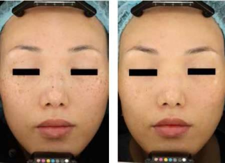 雀斑治疗效果对比图