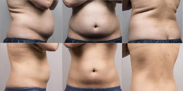冰美人减少腹部、腰部、背部脂肪前后对比图