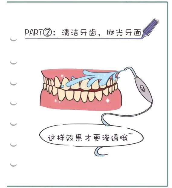 清洁牙齿过程