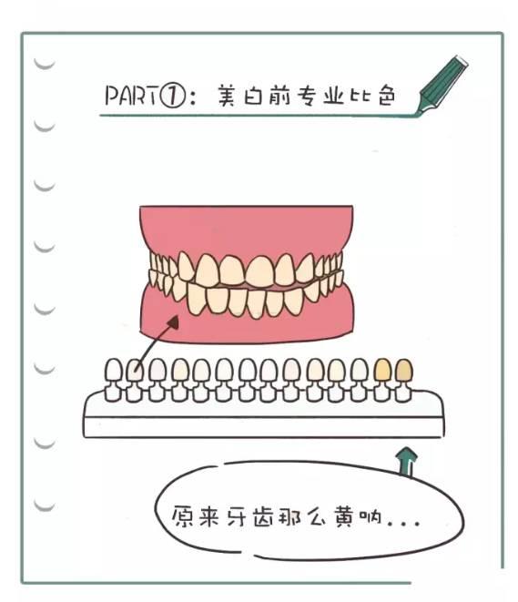 冷光美白牙齿过程