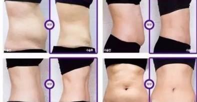 腹部减肥效果