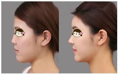 玻尿酸隆鼻效果