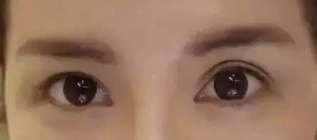 难看的双眼皮
