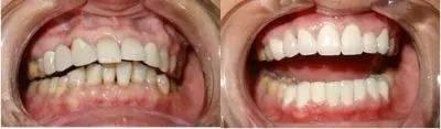 牙齿矫正对比